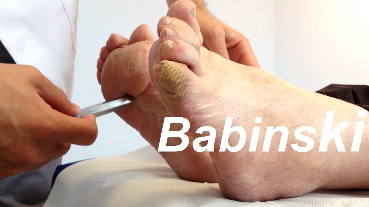 test de babinski