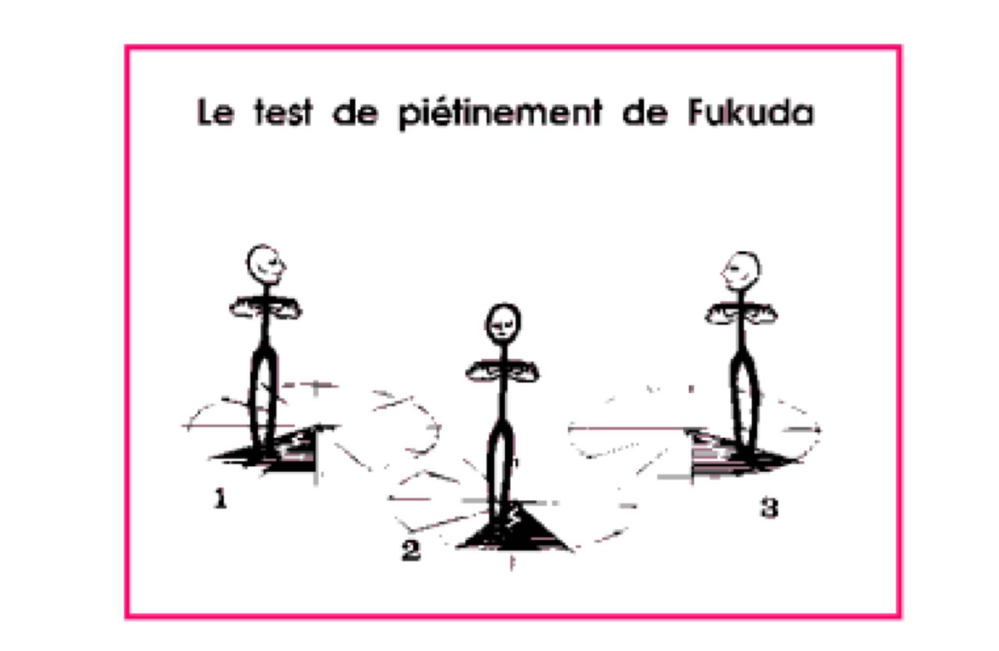 test de fukuda