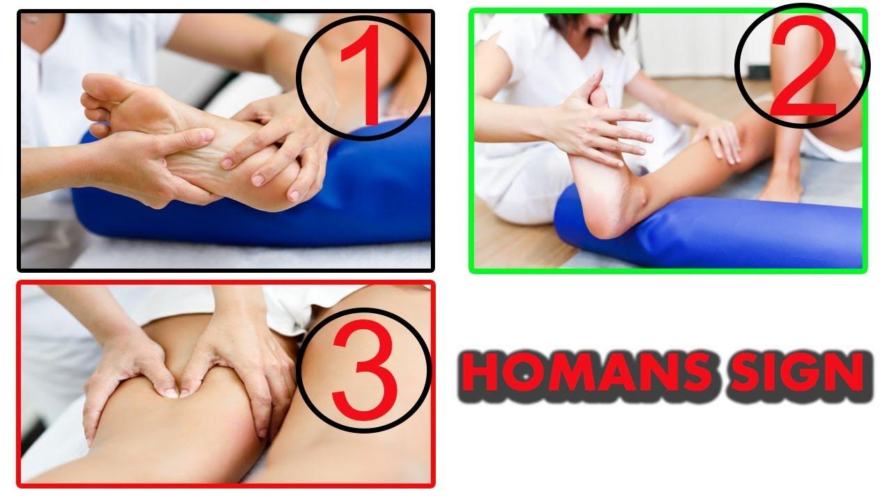 test de homans