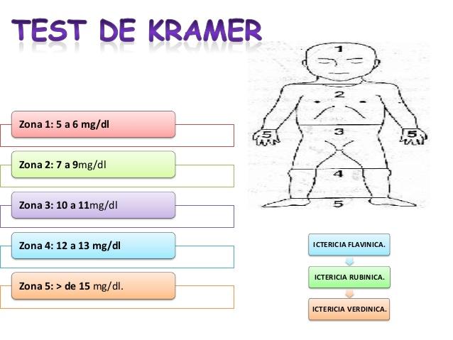 test de kramer
