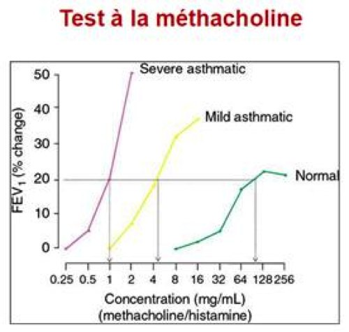 test de provocation bronchique a la metacholine