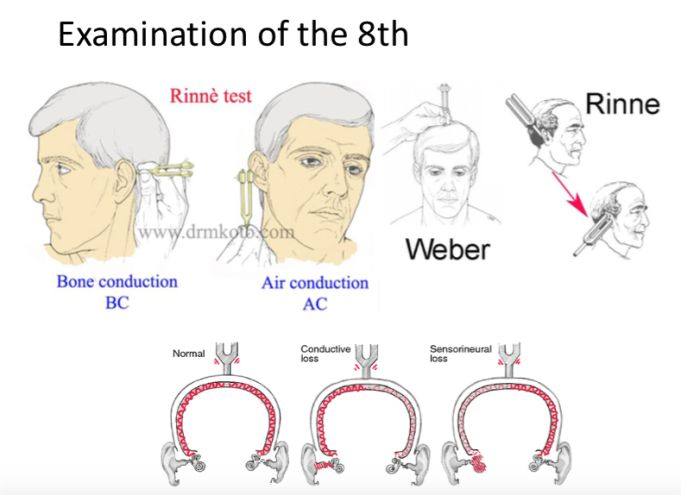 test de rinne