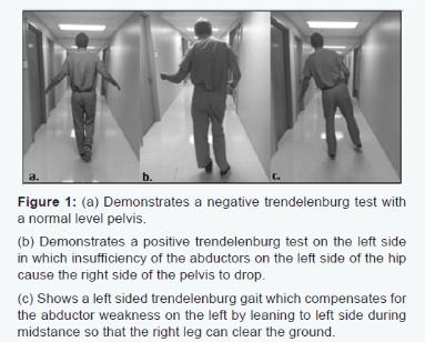 test de trendelenburg