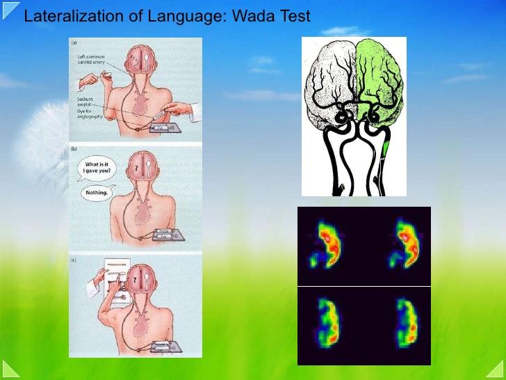 test de wada