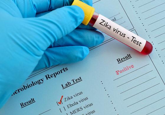test de zika