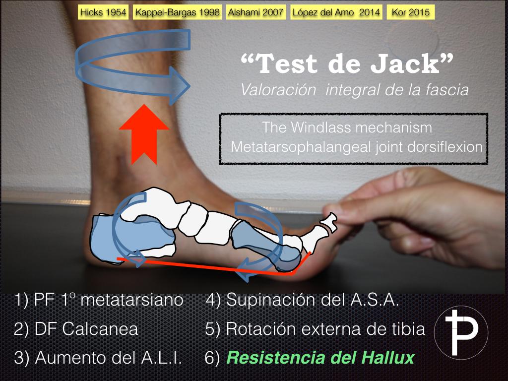 test de jack